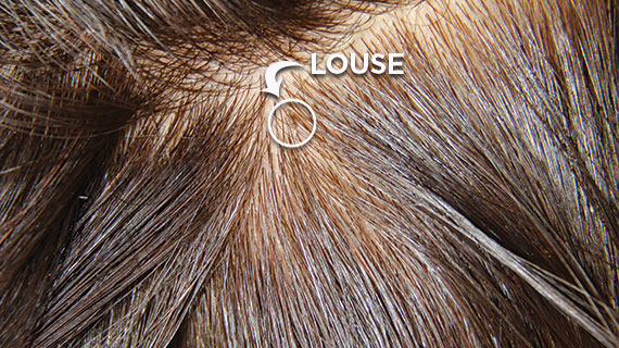Head louse in the hair